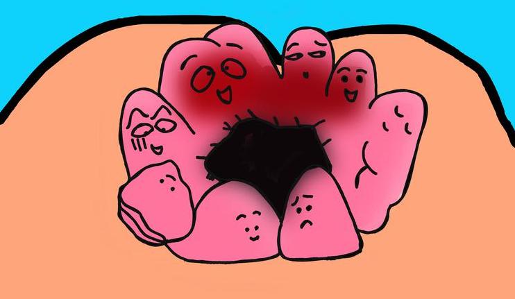 """冬季你被""""痔疮""""了吗?天津东南角肛肠专科医院讲述如何预防痔疮"""